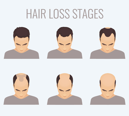 Male hair loss stages set. Top view portrait of a man losing hair. Male pattern baldness. Transplantation of hair. Signs of balding. Frontal hair loss. Vector illustration. Vectores