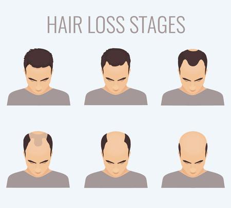 Maschio fasi di perdita dei capelli impostati. Vista dall'alto ritratto di un uomo perdere i capelli. Calvizie maschile. Il trapianto di capelli. Segni di calvizie. perdita di capelli frontale. Illustrazione vettoriale. Vettoriali