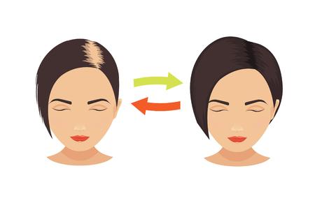 Mujer con problemas de pérdida de cabello antes y después del tratamiento para el cabello y el trasplante de cabello. establece la pérdida de cabello de patrón femenino. concepto de cuidado del cabello. ilustración del vector. Foto de archivo - 59304841