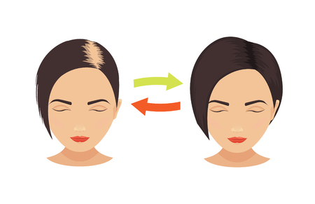 transplantation: Woman with hair loss problems before and after hair treatment and hair transplantation. Female pattern hair loss set. Hair care concept. Isolated vector illustration.