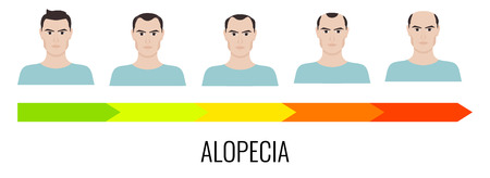 baldness: Alopecia stages set. Front view of a man losing hair. Male baldness. Male hair loss pattern. Human hair growth. Hair care concept. Vector illustration.