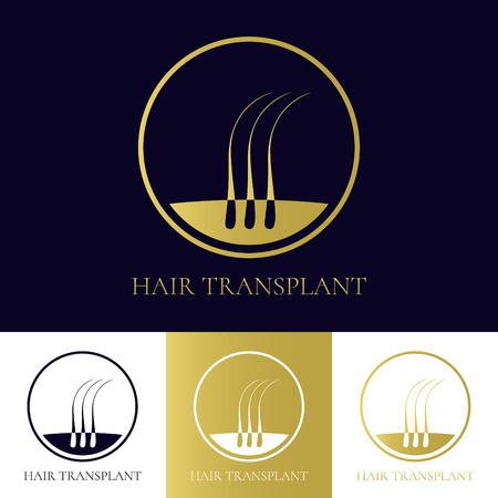 plantilla de trasplante de cabello con tres bulbos pilosos en un círculo. Concepto de tratamiento de pérdida de cabello. Hair diagnóstico médico etiqueta. icono del folículo piloso. símbolo bulbo del cabello. Ilustración del vector.