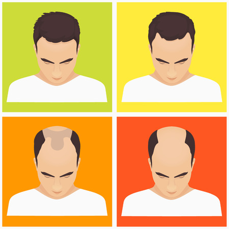 baldness: Male hair loss stages set on multicolored background. Male pattern baldness. Different stages of hair loss in man. Transplantation of hair. Human hair growth. Hair care concept. Vector illustration. Illustration