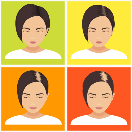 baldness: Female hair loss stages vector set on multicolored background. Female pattern baldness. Different stages of hair loss in women. Transplantation of hair. Human hair growth. Hair care concept.