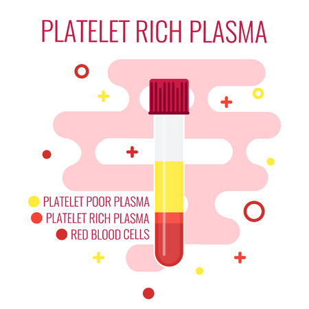 Test tube filled with blood for PRP procedure on red background. Platelet rich plasma blood test tube icon. Laboratory centrifuge test tube with blood plasma. Medical concept. Vector illustration.