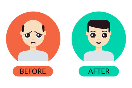 baldness: Man with hair loss problem before and after hair treatment and hair transplantation.