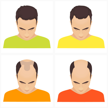 baldness: Male hair loss stages set. Male pattern baldness. Different stages of hair loss in men. Transplantation of hair. Human hair growth. Hair care concept. Vector illustration.
