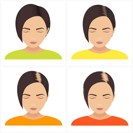 baldness: p�rdida de cabello en la mujer etapas conjunto de vectores. La calvicie femenina patr�n. concepto de cuidado del cabello.