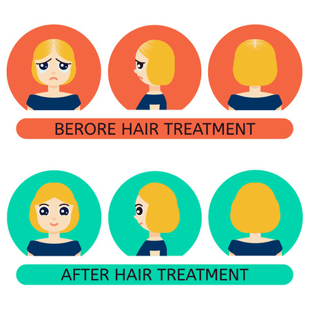 back problem: Front, side, back view of a woman with hair loss problem before and after hair treatment and hair transplantation. Female hair loss set in cartoon style. Perfect for hair clinics.