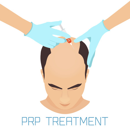 Platelet rich plasma injection procedure for balding men. PRP treatment process. Male hair loss treatment infographics. Meso therapy. Hair growth stimulation. Stock Illustratie