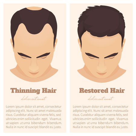 restored: Man with thinning and restored hair. Hair condition before and after hair treatment and hair transplantation. Male pattern hair loss set. Hair care concept. Isolated vector illustration. Illustration