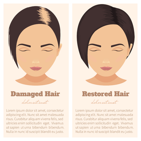 Woman with damaged and restored hair. Hair condition before and after hair treatment and hair transplantation. Female pattern hair loss set. Hair care concept. Isolated vector illustration. Çizim