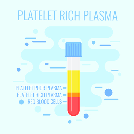Test tube filled with blood for PRP procedure on blue background. Platelet rich plasma blood test tube icon. Laboratory centrifuge test tube with blood plasma. Medical concept. Vector illustration.