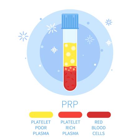 Vector illustratie van een reageerbuis gevuld met bloed voor PRP procedure. Bloedplaatjes rijk plasma bloed reageerbuis. Laboratorium centrifuge buis met bloedplasma. Medische concept. Stock Illustratie