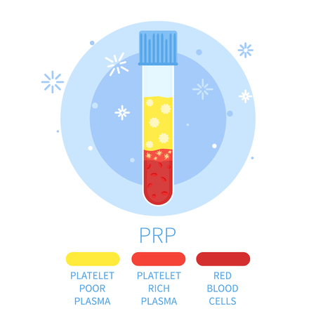 Vector illustration of a test tube filled with blood for PRP procedure. Platelet rich plasma blood test tube. Laboratory centrifuge tubing with blood plasma. Medical concept.