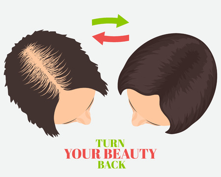 transplantation: Woman losing hair before and after hair treatment and hair transplantation. Turn Your Beauty Back quote. Female hair loss set. Hair care concept. Beauty concept design. Isolated vector illustration.