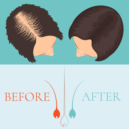 Top view of a woman before and after hair treatment and hair transplantation. Female alopecia. Hair care concept. Hair bulb logo. Hair loss clinic concept design. Vector illustration.