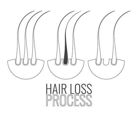 medical center: Hair loss process. Hair medical diagnostics symbols set. Hair bulb elements. Hair medical diagnostics label. Hair follicle icon. Hair medical center poster. Hair loss treatment concept.
