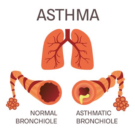 asthma inhaler: Normal and asthmatic bronchioles on white background. Asthma medical concept. Lungs symbol. Human body organs anatomy icon. Isolated vector illustration.