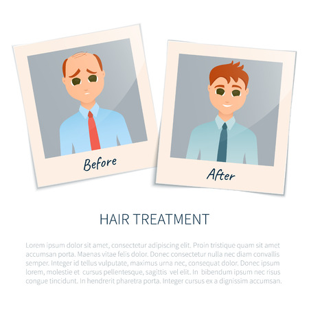 baldness: Vector illustration of two photographs of a man before and after hair treatment and hair transplantation. Male hair loss design template. Alopecia medical concept. Vector illustration.