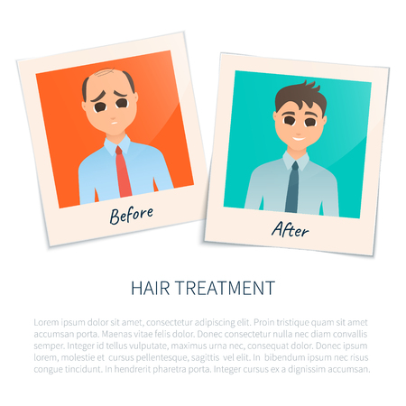 Vector illustration of two photographs of a man before and after hair treatment and hair transplantation. Male hair loss design template. Alopecia medical concept. Vector illustration.