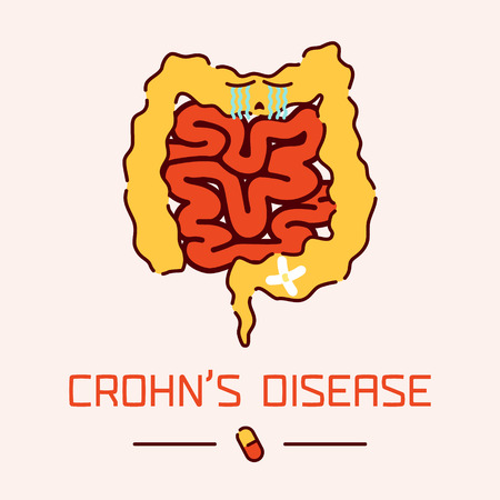 obstruction: Crohns disease awareness poster with sad cartoon intestine on white background. Inflammatory bowel disease. Human body organs anatomy icon. Medical concept. Vector illustration.