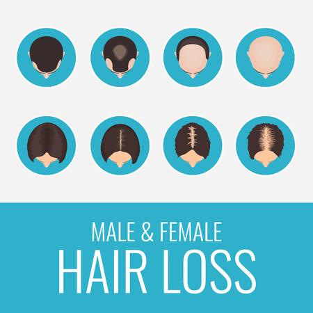 conjunto de la pérdida de cabello de patrón masculino y femenino. Etapas de la calvicie en los hombres y las mujeres. infografía plantilla de diseño médico alopecia. La pérdida de cabello clínica concepto de diseño. Ilustración del vector.