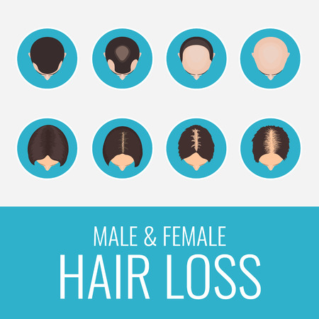 baldness: Male and female pattern hair loss set. Stages of baldness in men and women. Alopecia infographic medical design template. Hair loss clinic concept design. Vector illustration.