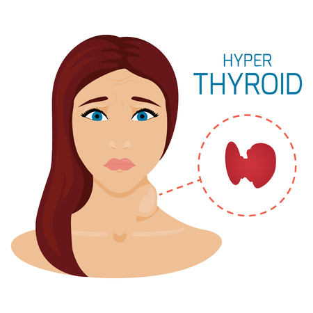 Woman with hyperthyroid gland. Hyperthyroidism symbol. Enlarged thyroid diagram sign. Patient with a goiter. Medical concept. Anatomy of people. Vector illustration. Illustration