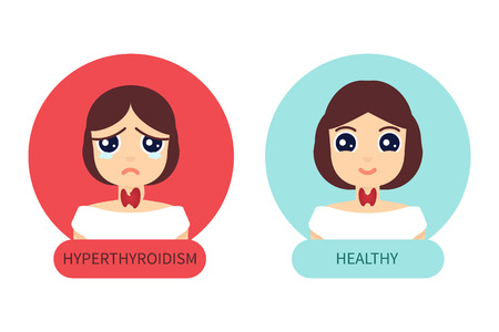 Woman with hyperthyroid gland versus healthy woman. Hyperthyroism symbol. Thyroid diagram sign. Medical concept. Anatomy of people. Vector illustration made in cartoon style. Иллюстрация