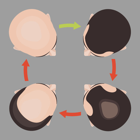 Hair loss stages set. Top view portrait of a man before and after hair treatment and hair transplantation. Isolated vector illustration. Illustration