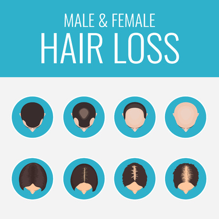 Male and female pattern hair loss set. Stages of baldness in men and women. Alopecia infographic medical design template. Hair loss clinic concept design. Vector illustration.