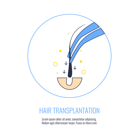 centers: Hair transplant treatment symbol. Alopecia medical procedure. Hair loss treatment, diagnosis and transplantation concept. illustration for hair clinics and diagnostic centers. Illustration