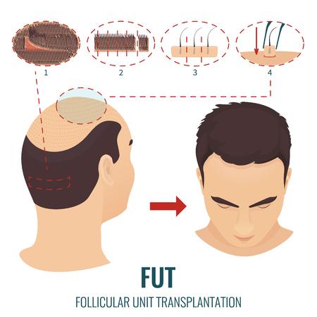 Tratamiento de pérdida de cabello FUT Foto de archivo - 70130482