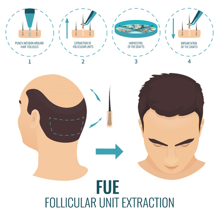 FUE hair loss treatment 版權商用圖片 - 70662725
