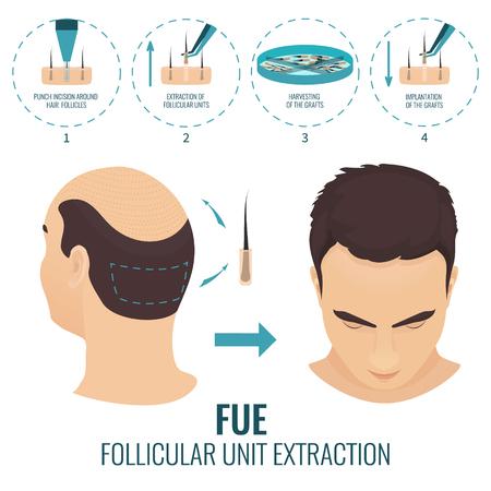 Tratamiento de pérdida de cabello FUE Foto de archivo - 70662725
