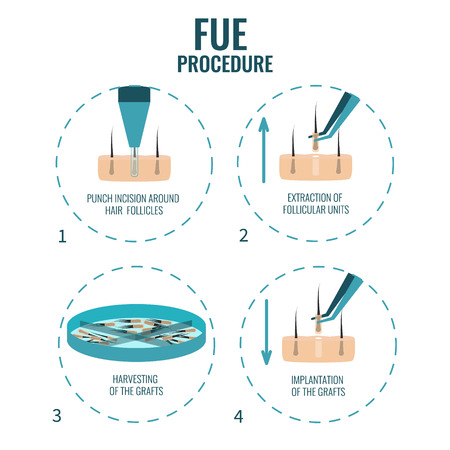 hair treatment: FUE stages treatment