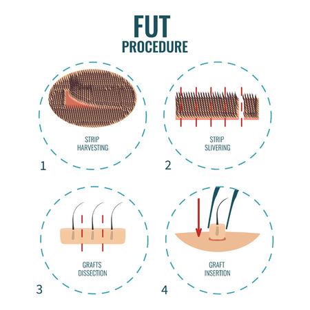 FUT behandeling van het haarverlies Stock Illustratie