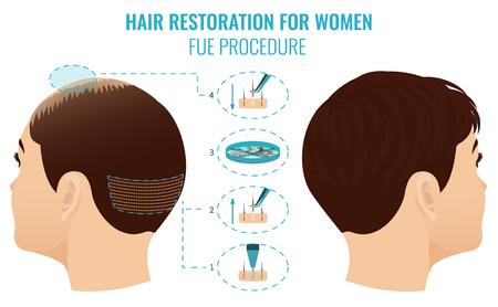 FUT treatment for women Foto de archivo
