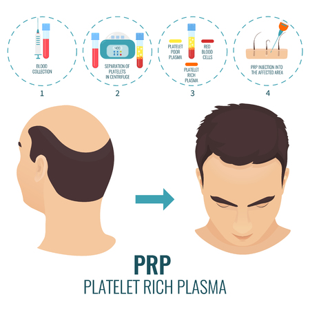 PRP treatment poster Иллюстрация
