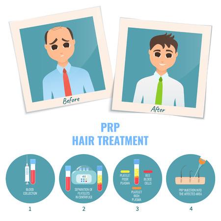 Man before and after PRP treatment Illusztráció