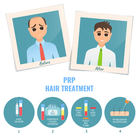 Man before and after PRP treatment Illustration
