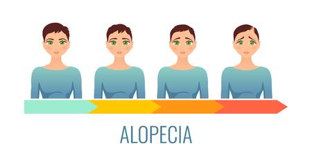 Female alopecia stages set.
