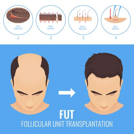 Tratamiento de pérdida de cabello FUT Foto de archivo - 77407993