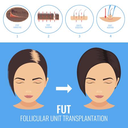 FUT treatment for women  イラスト・ベクター素材