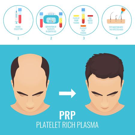 Hombre antes y después del tratamiento RPR Foto de archivo - 77464183
