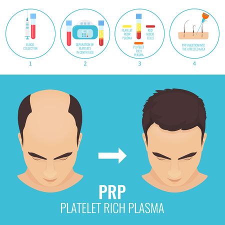 Man before and after RPR therapy Stock Vector - 77464183