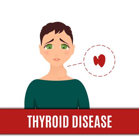 Frauen mit normaler und hyperthyroiddrüse Vektorgrafik