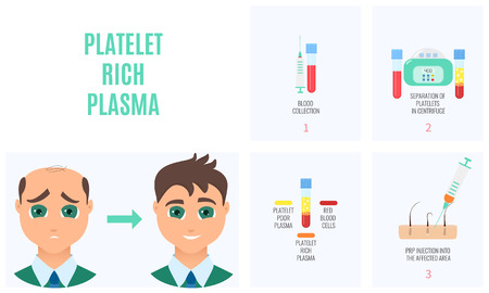Platelet rich plasma injection procedure. PRP therapy process for men. Male hair loss treatment infographics. Meso therapy. Hair regrowth stimulation method. Vector illustration.
