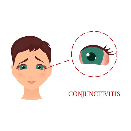 Woman with conjunctivitis Vectores
